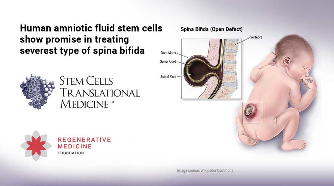 Human amniotic fluid stem cells show promise in treating severest type of spina bifida
