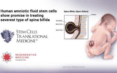 Human amniotic fluid stem cells show promise in treating severest type of spina bifida