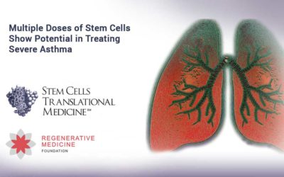 Multiple Doses of Stem Cells Show Potential in Treating Severe Asthma