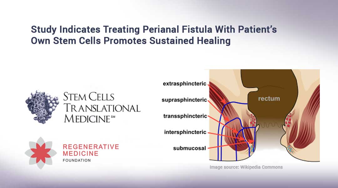 Study Indicates Treating Perianal Fistula With Patient's Own Stem Cells Promotes Sustained Healing