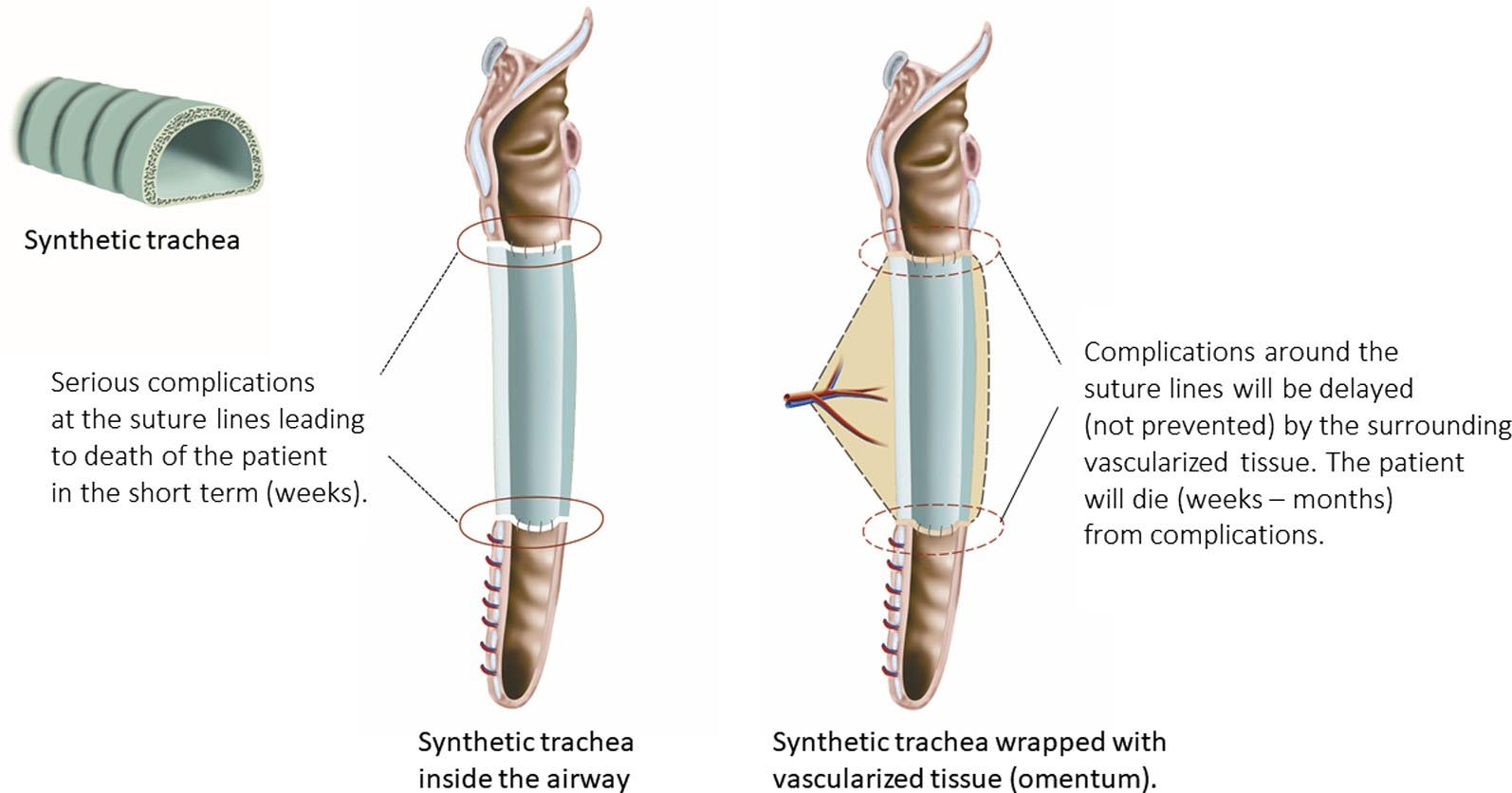 Commentary: The sobering truth about tracheal regeneration