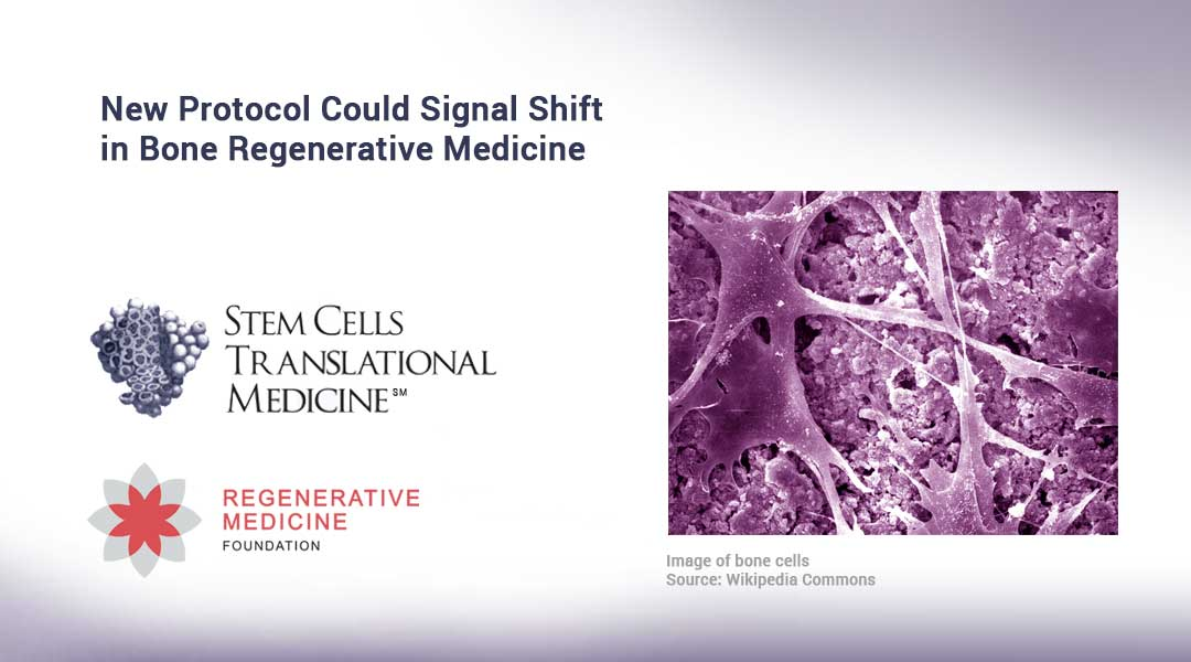 New Protocol Could Signal Shift in Bone Regenerative Medicine