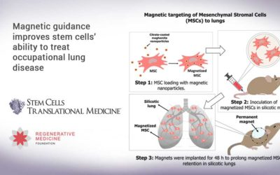 Magnetic guidance improves stem cells' ability to treat occupational lung disease