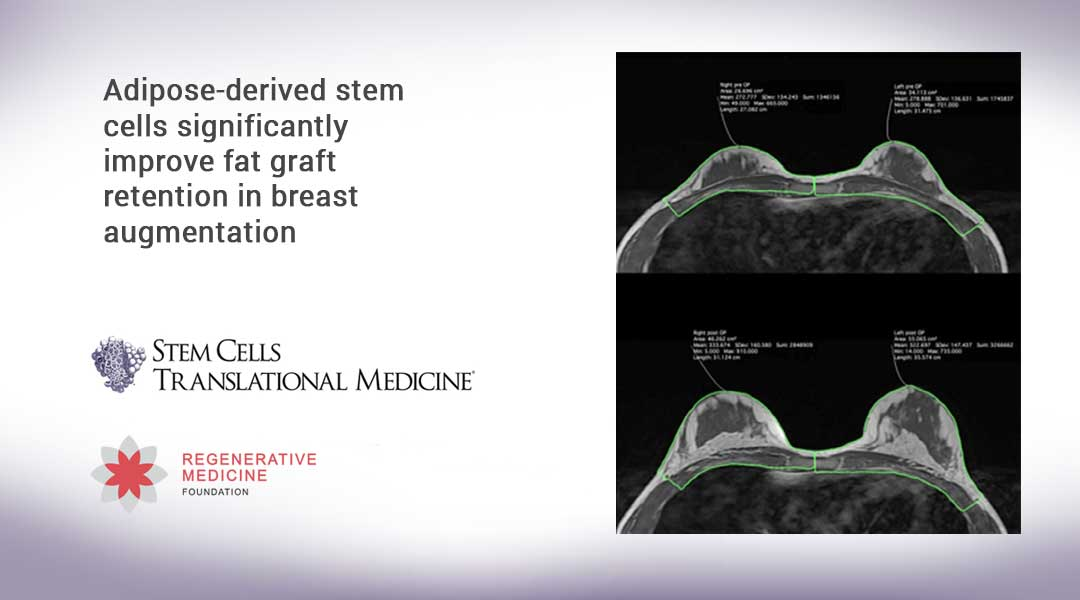 Adipose-derived stem cells significantly improve fat graft retention in breast augmentation