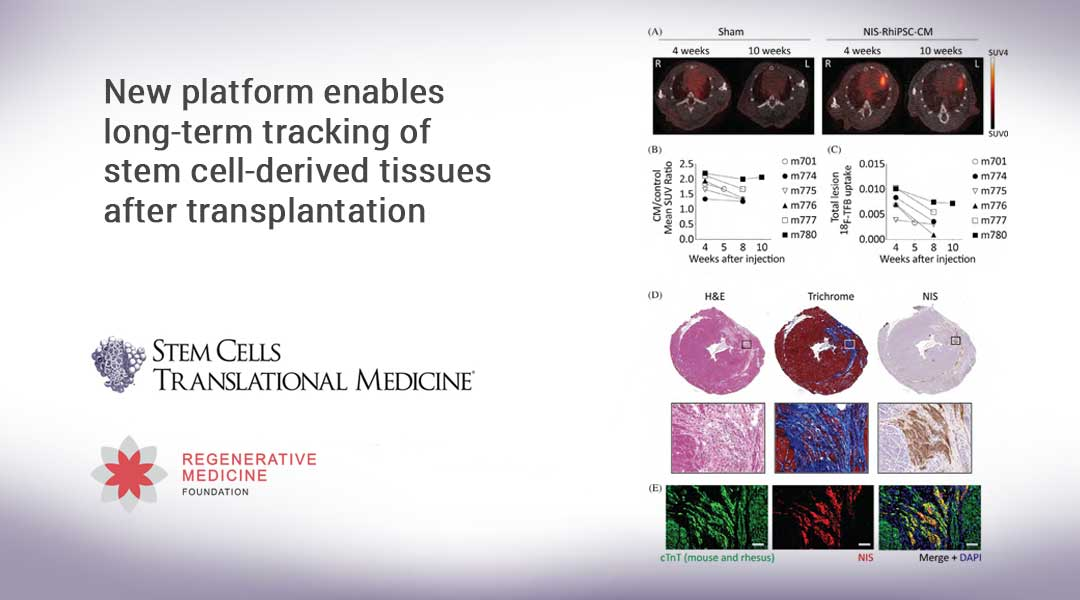 New platform enables long-term tracking of stem cell-derived tissues after transplantation