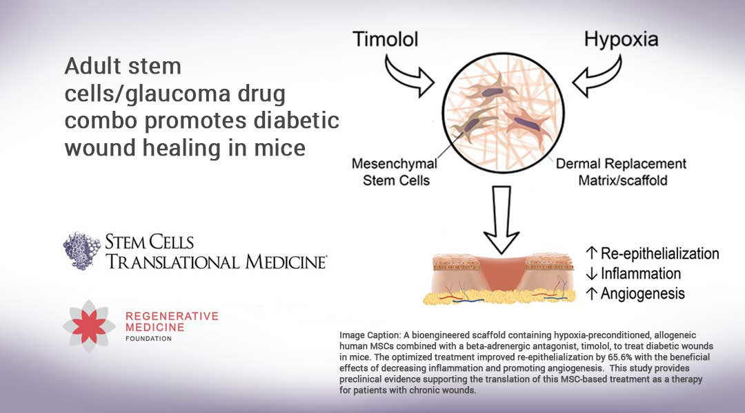 Adult stem cells/glaucoma drug combo promotes diabetic wound healing in mice