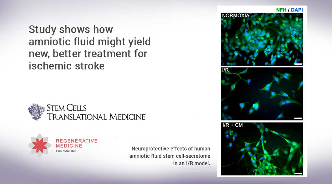 Study shows how amniotic fluid might yield new, better treatment for ischemic stroke