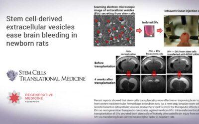 Stem cell-derived extracellular vesicles ease brain bleeding in newborn rats