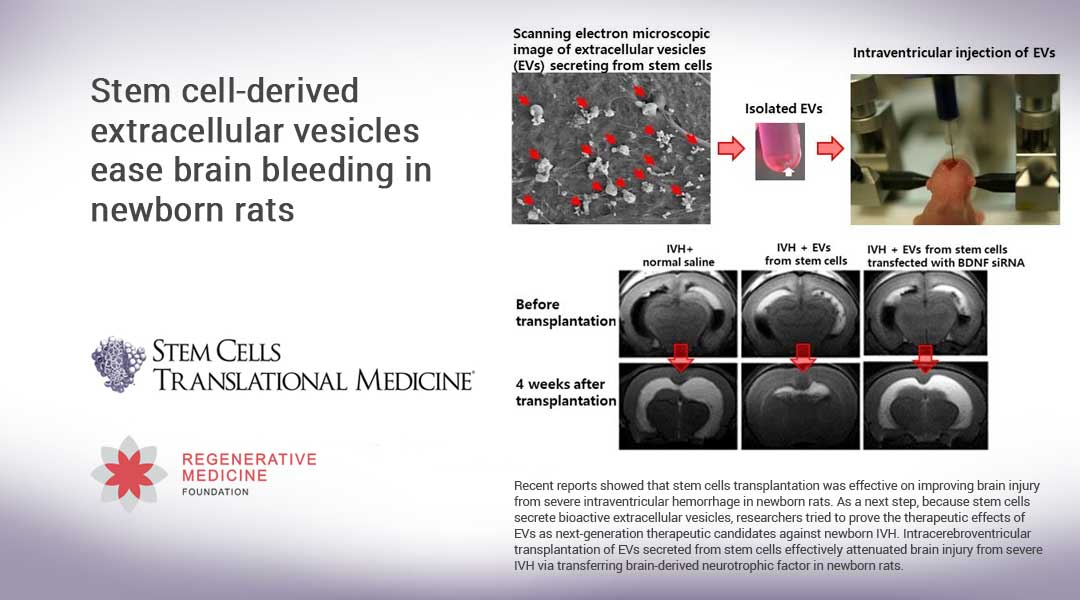 Stem cell-derived extracellular vesicles ease brain bleeding in newborn rats