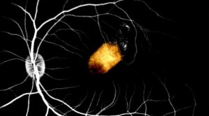 This is an image of RPE implant embedded in the sub-retinal space of a non-human primate model. The background retinal vessels highlighted by fundus fluorescein angiography.