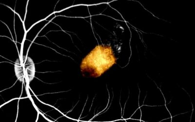 Retinal cell transplant clears experimental hurdle toward treating blindness
