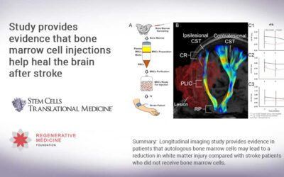Study provides evidence that bone marrow cell injections help heal the brain after stroke