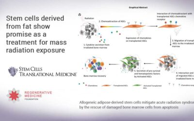 Stem cells derived from fat show promise as a treatment for mass radiation exposure