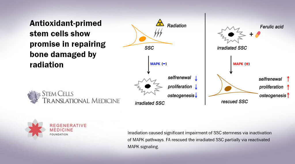 Antioxidant-primed stem cells show promise in repairing bone damaged by radiation