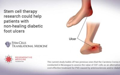 Stem cell therapy research could help patients with non-healing diabetic foot ulcers