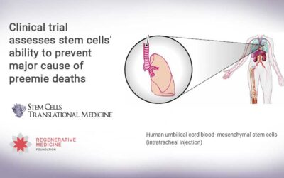 Clinical trial assesses stem cells' ability to prevent major cause of preemie deaths
