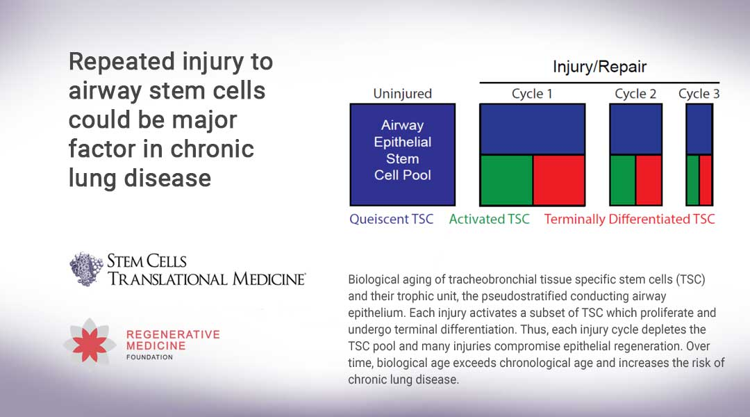 Repeated injury to airway stem cells could be major factor in chronic lung disease